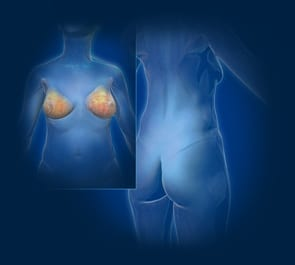 Reconstructive Breast Surgery, Post Operation Image - Center for Restorative Breast Surgery