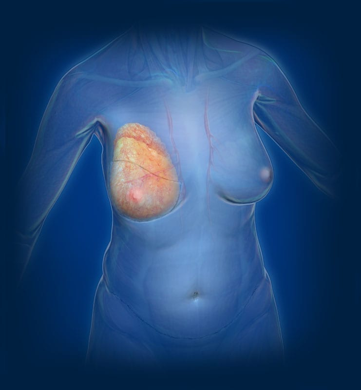 DIEP Flap Breast Reconstruction, Step Three Image - Center for Restorative Breast Surgery