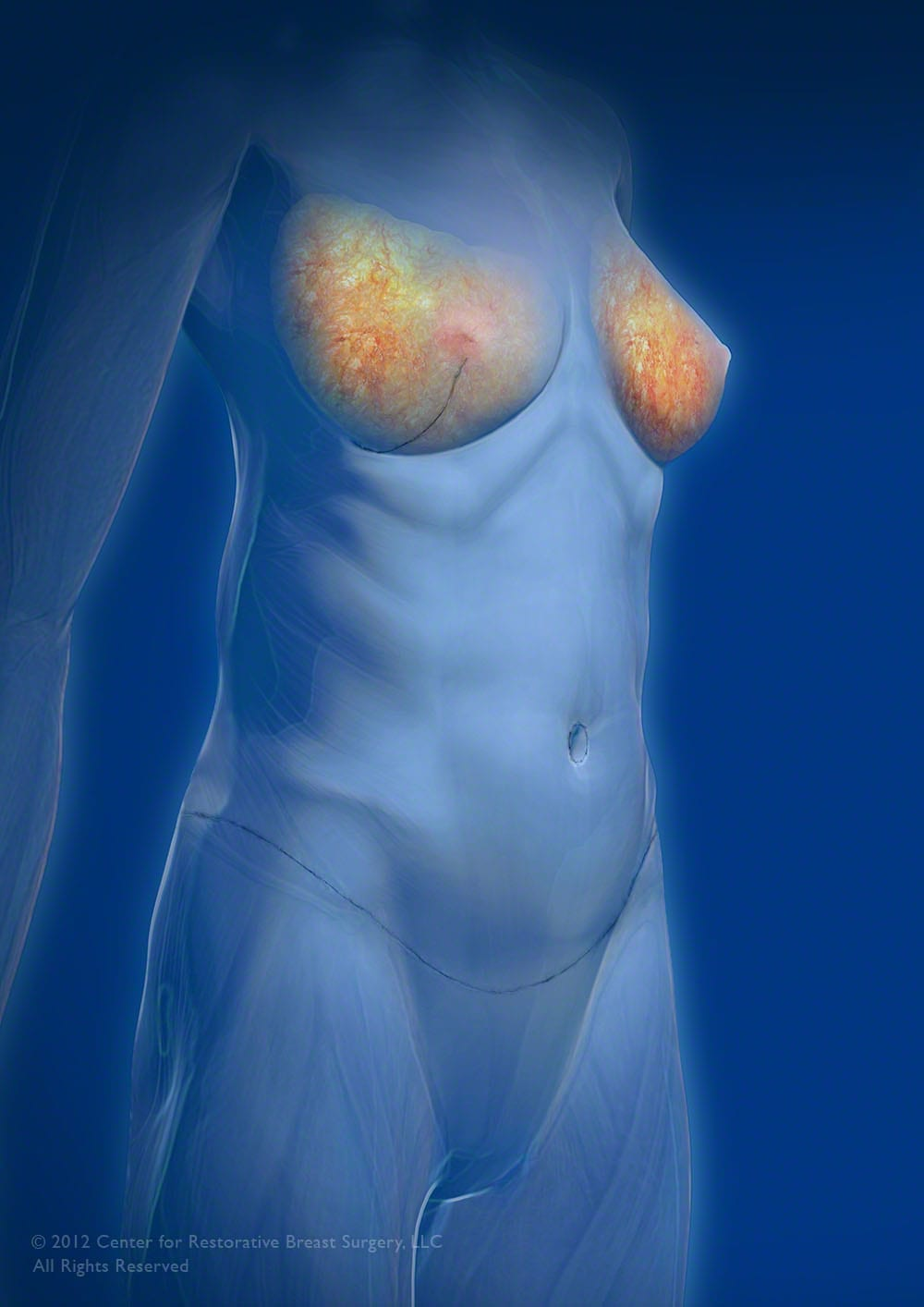 Image of Center For Restorative Breast Surgery in New Orleans, LA performing nipple sparing breast reconstruction