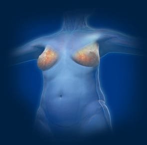 Diep I Image For Breast Cancer Reconstruction