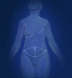 Diep I Image For Breast Cancer Reconstruction - Center For Restorative Breast Surgery