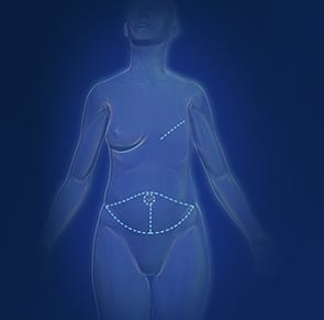 Unilateral DIEP Flap Surgery Computer Image - Center for Restorative Breast Surgery