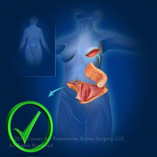 APEX flap breast reconstruction surgery by Center For Restorative Breast Surgery in New Orleans, LA
