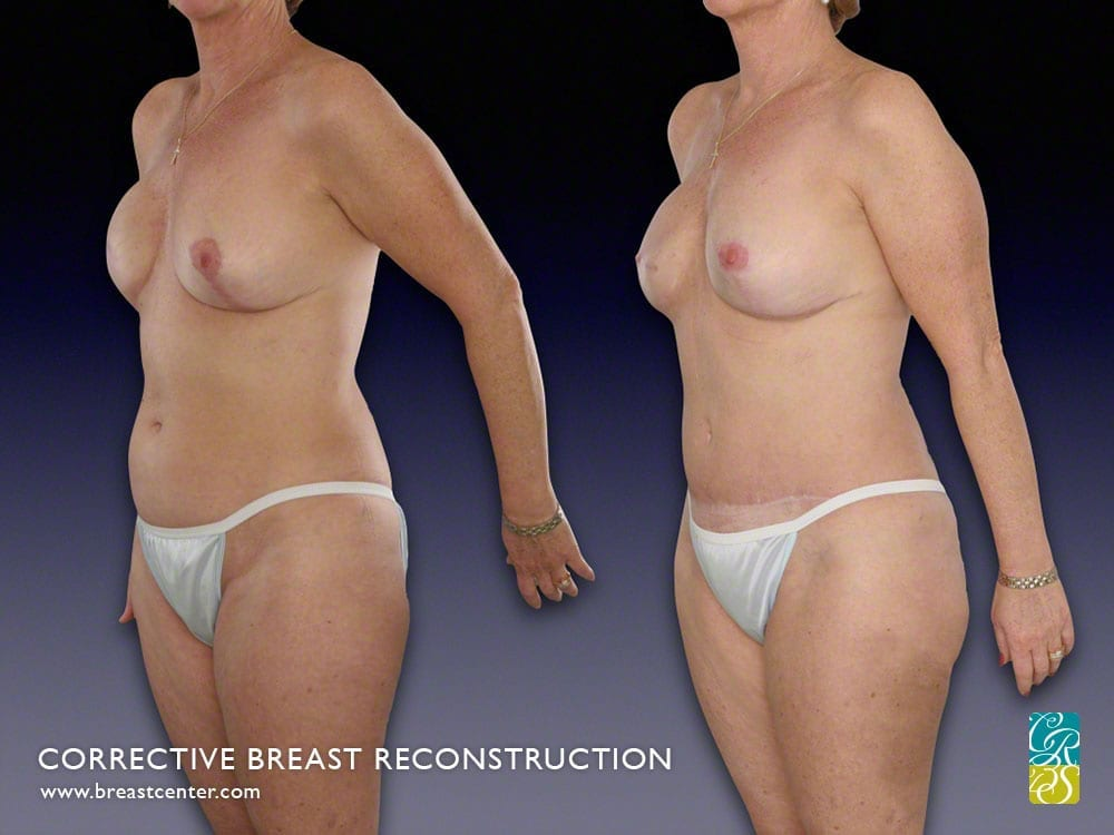 Reconstruction flap breast