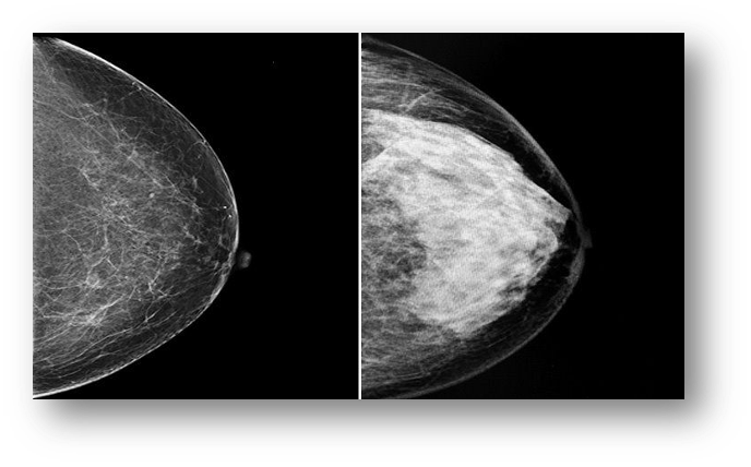 X-Ray image of mammographic breast density - The Center for Restorative Breast Surgery